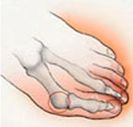 Косточка на ноге (вальгусная деформация): лечение халюс ...