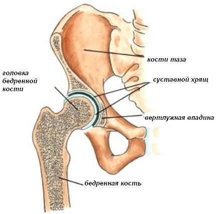 Головка тазобедренного сустава хирургическое лечение еравматического бурсита коленного сустава