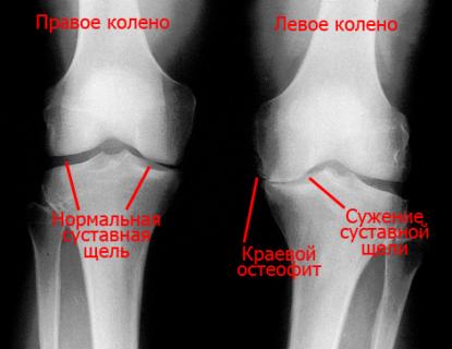 Коксартроз гонартроз и другие заболевания суставов лечение после хондрального перелома коленного сустава