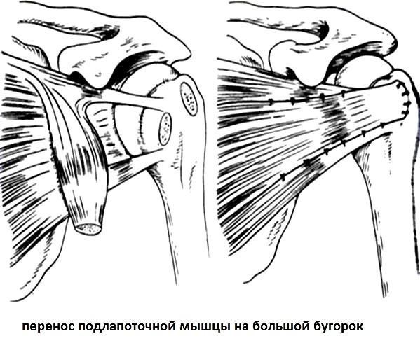гомеопатия лечение артроза