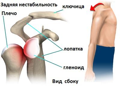 Смещение плечевого сустава