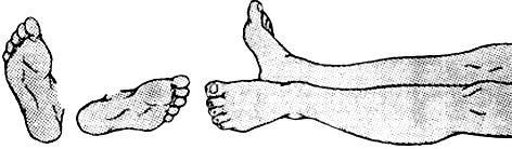 Положение наружной ротации левой ноги