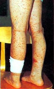 Петехиальная кровоточивость
