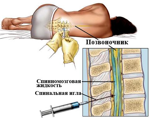 какие могут біть послецтвия опосля спиномозговой пункции