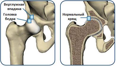 Минимально инвазивное тотальное эндопротезирование тазобедренного сустава