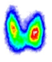 Лечение радио анальным йодом щитовитки