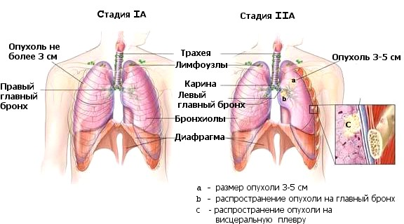 Рак легкого I cтадия