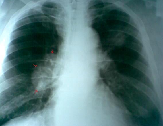 Рентгенограмма легких в прямой проекции: Центральный рак правого легкого.