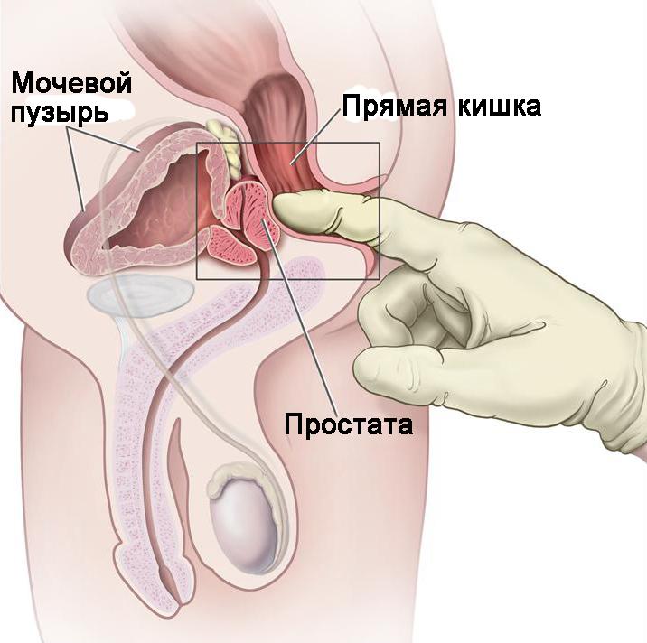 народное лечение паразитов в организме человека