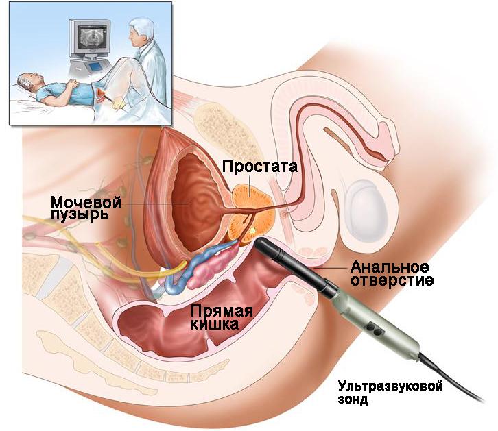 Простата давил член